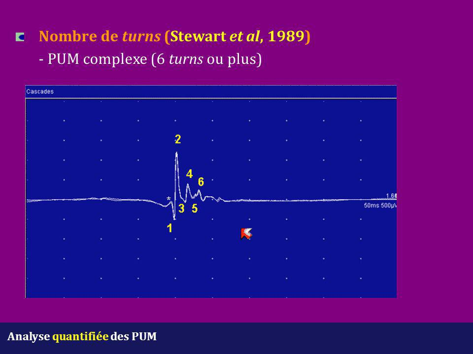 Nombre de turns (Stewart et al, 1989) - PUM complexe (6 turns ou plus)