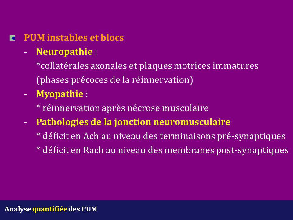 PUM instables et blocs. -. Neuropathie :