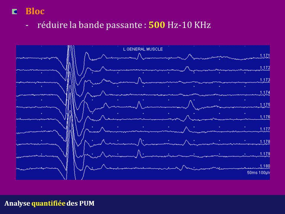 Bloc - réduire la bande passante : 500 Hz-10 KHz