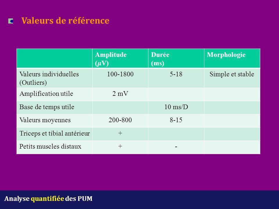 Valeurs de référence Amplitude (𝜇V) Durée (ms) Morphologie