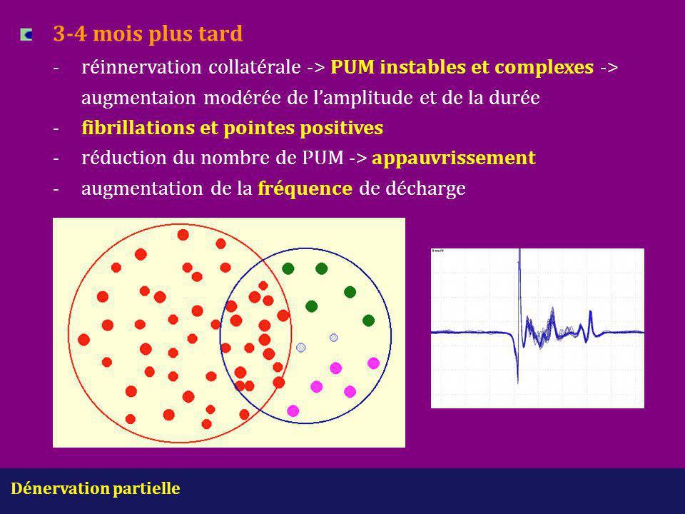 3-4 mois plus tard - réinnervation collatérale -> PUM instables et complexes -> augmentaion modérée de l'amplitude et de la durée - fibrillations et pointes positives - réduction du nombre de PUM -> appauvrissement - augmentation de la fréquence de décharge