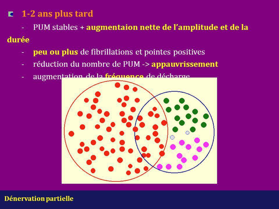 1-2 ans plus tard - PUM stables + augmentaion nette de l'amplitude et de la durée - peu ou plus de fibrillations et pointes positives - réduction du nombre de PUM -> appauvrissement - augmentation de la fréquence de décharge