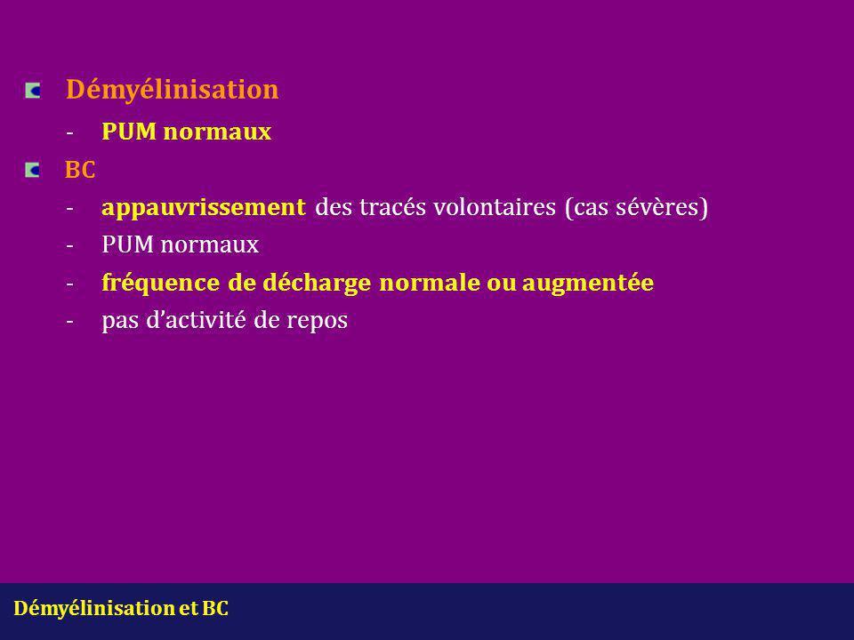 Démyélinisation - PUM normaux