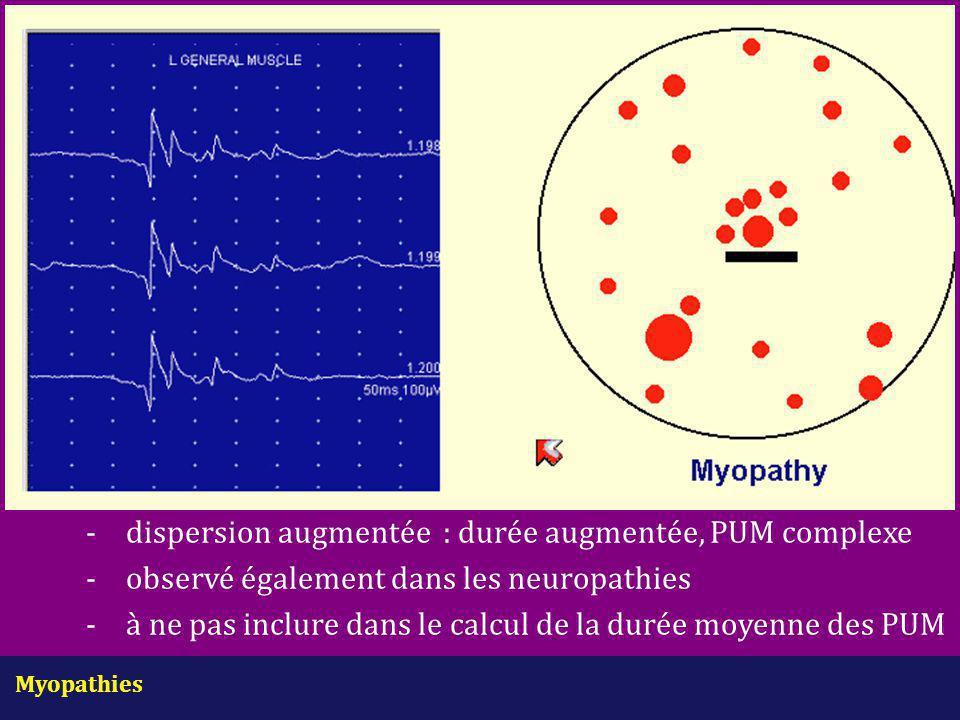 -. dispersion augmentée : durée augmentée, PUM complexe. -