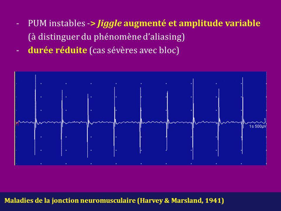 -. PUM instables -> Jiggle augmenté et amplitude variable