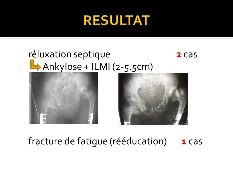 RESULTAT réluxation septique 2 cas Ankylose + ILMI (2-5.5cm) fracture de fatigue (rééducation) 1 cas