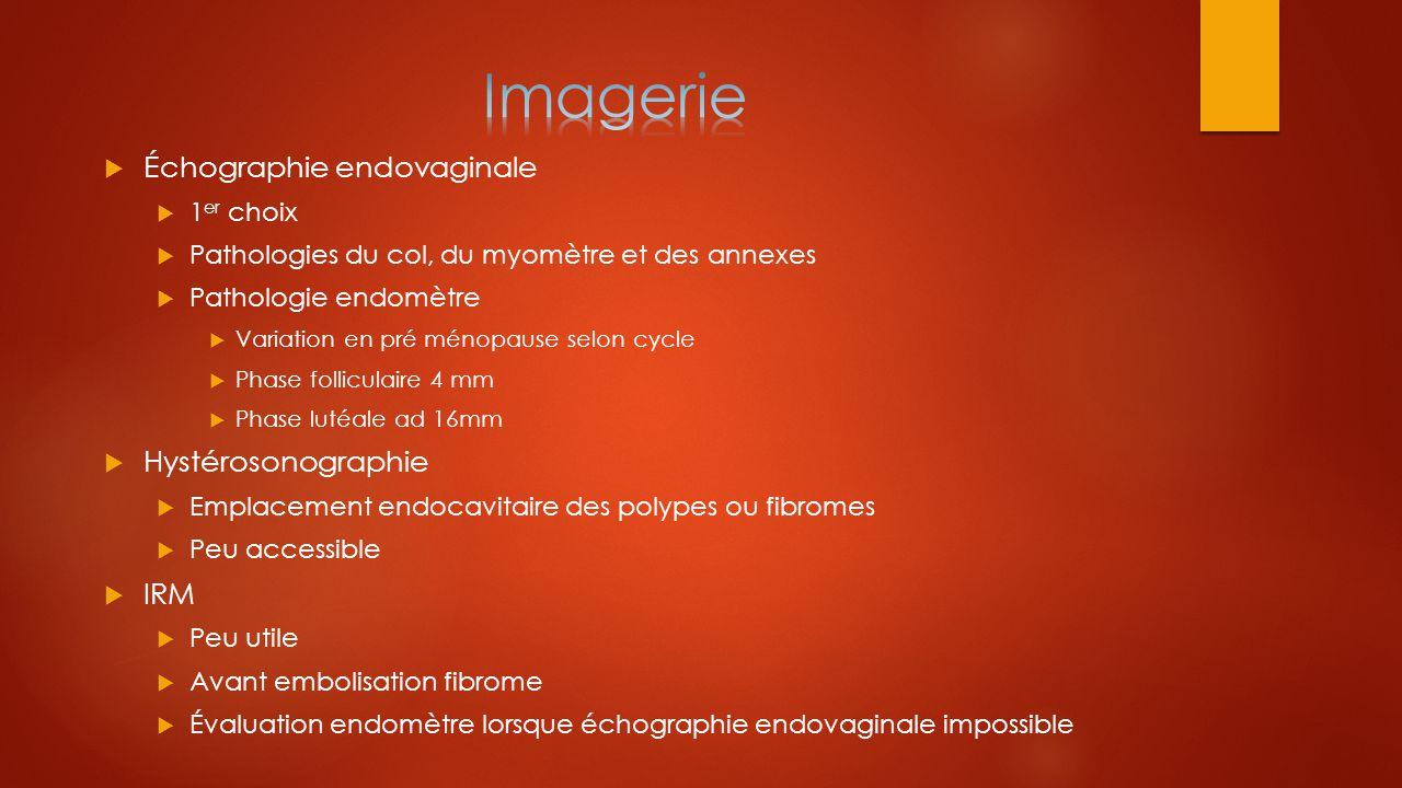 Imagerie Échographie endovaginale Hystérosonographie IRM 1er choix