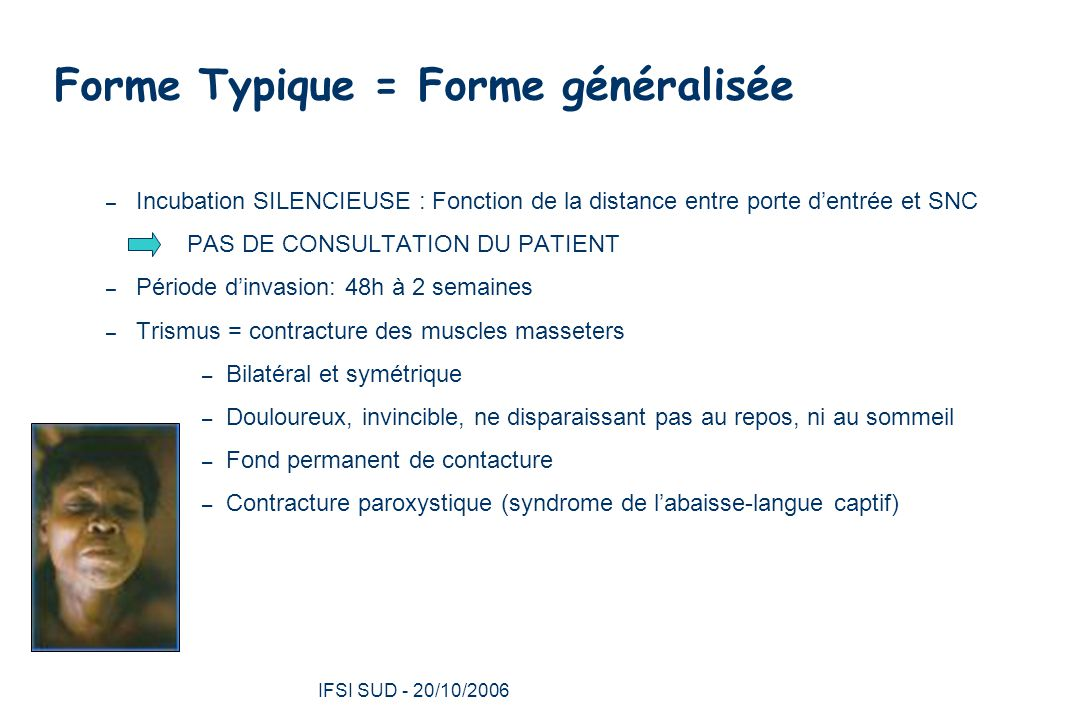Forme Typique = Forme généralisée
