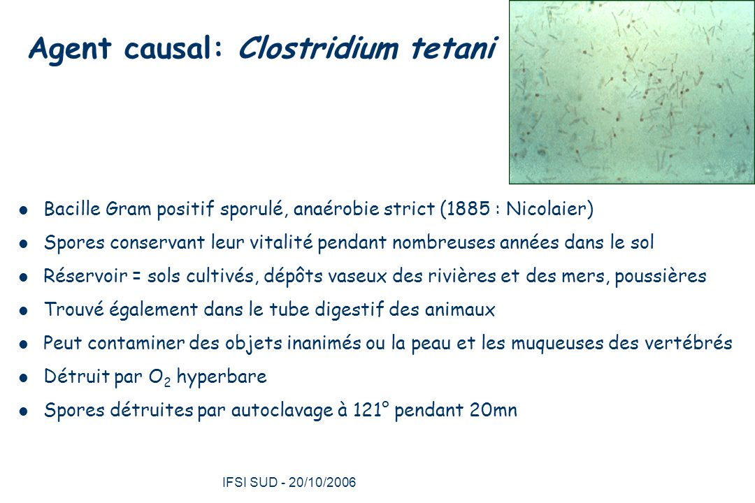Agent causal: Clostridium tetani