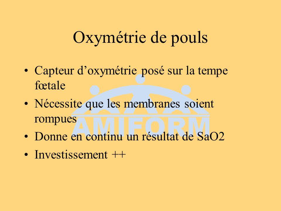 Oxymétrie de pouls Capteur d'oxymétrie posé sur la tempe fœtale