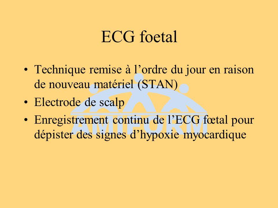 ECG foetal Technique remise à l'ordre du jour en raison de nouveau matériel (STAN) Electrode de scalp.