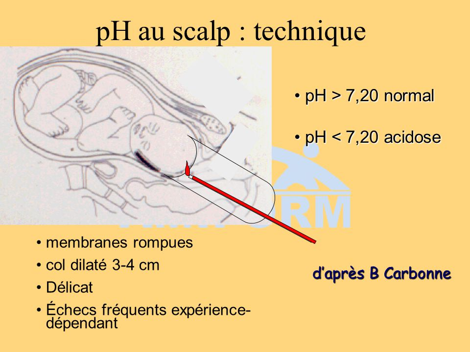 pH au scalp : technique pH > 7,20 normal pH < 7,20 acidose
