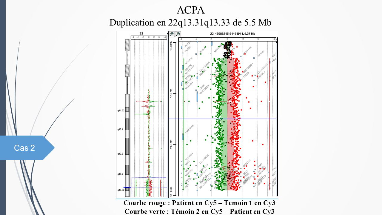 ACPA Duplication en 22q13.31q13.33 de 5.5 Mb Cas 2