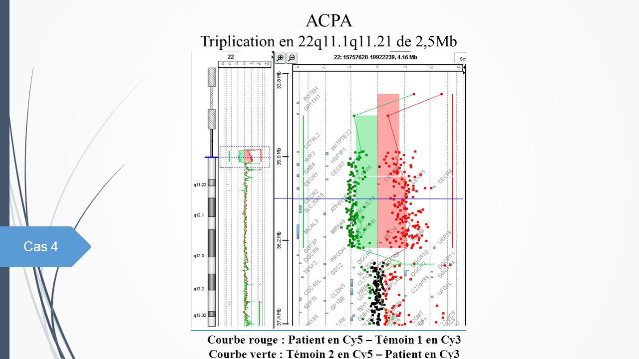 ACPA Triplication en 22q11.1q11.21 de 2,5Mb Cas 4