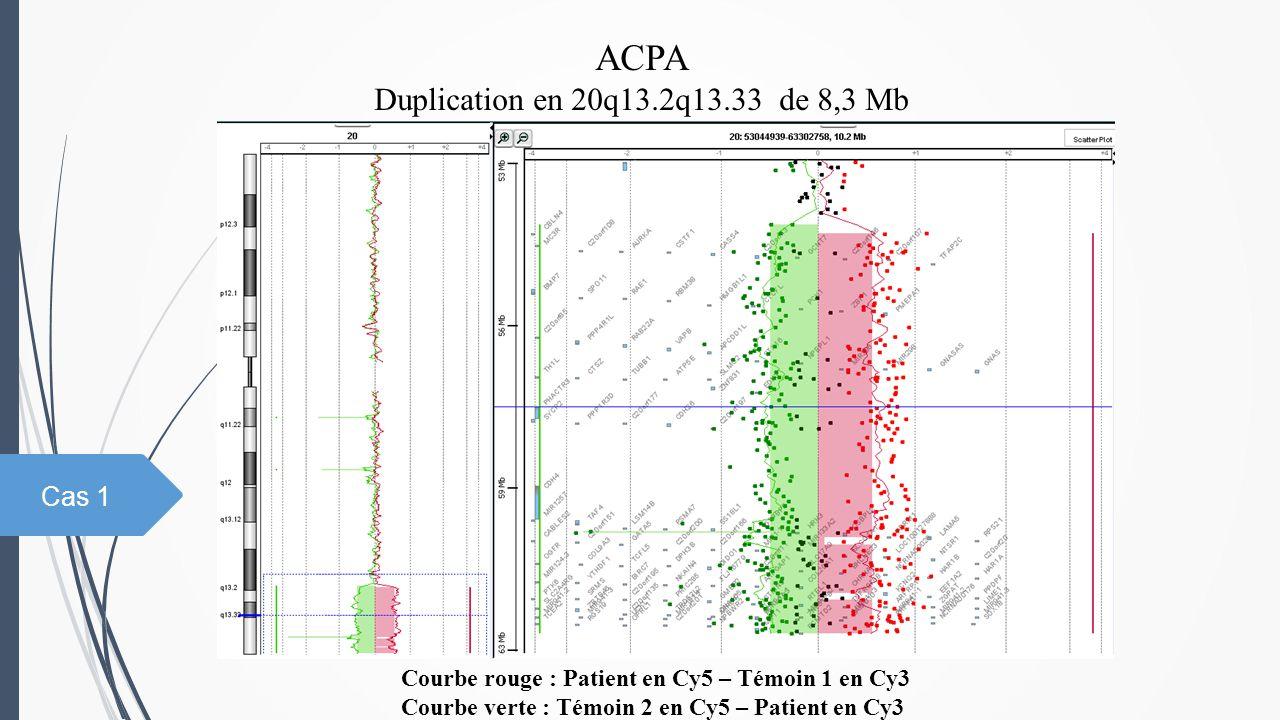 ACPA Duplication en 20q13.2q13.33 de 8,3 Mb Cas 1