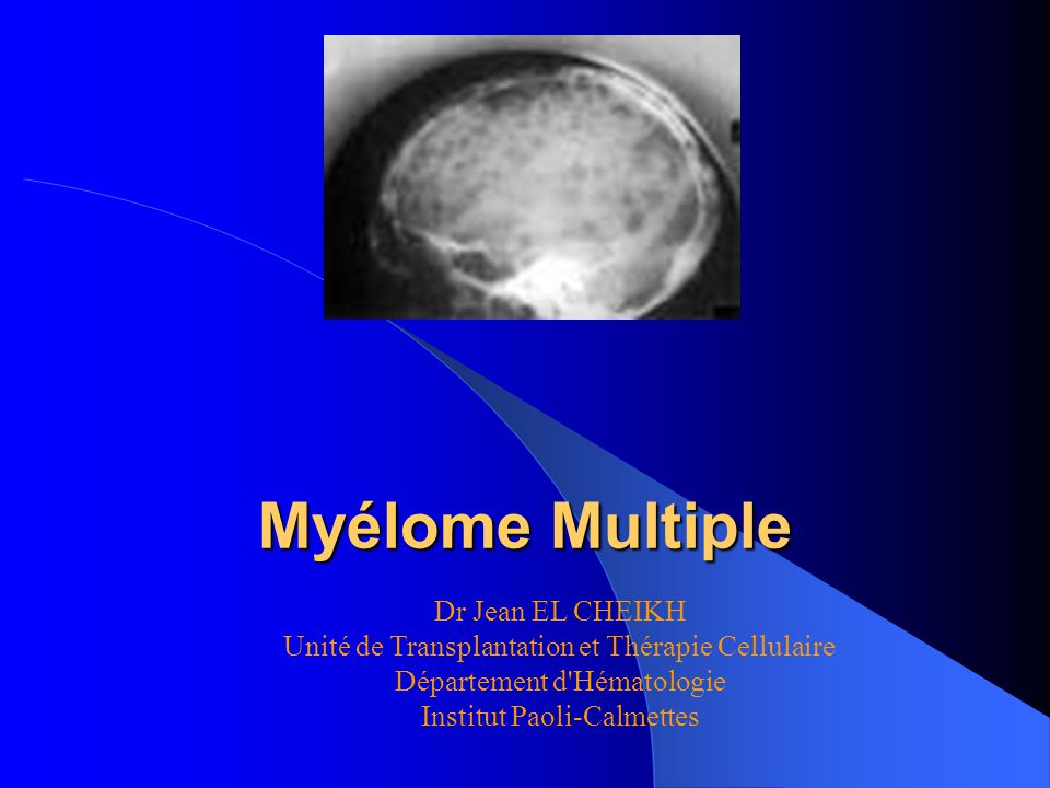 Myélome Multiple Dr Jean EL CHEIKH