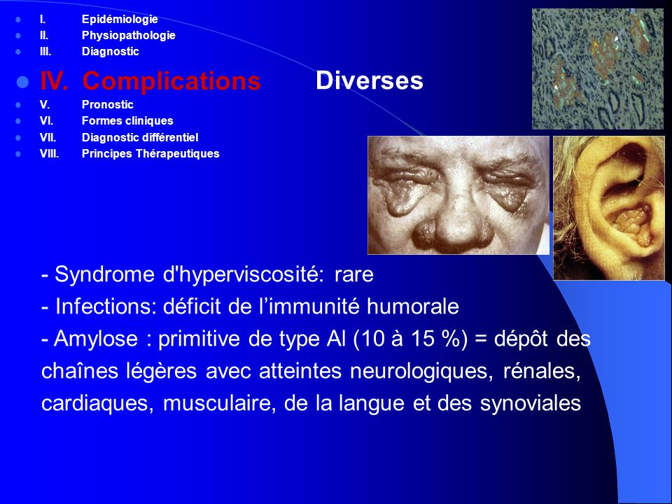 IV. Complications Diverses - Syndrome d hyperviscosité: rare