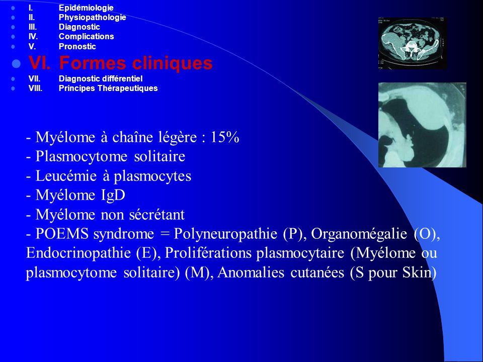 VI. Formes cliniques Myélome à chaîne légère : 15%