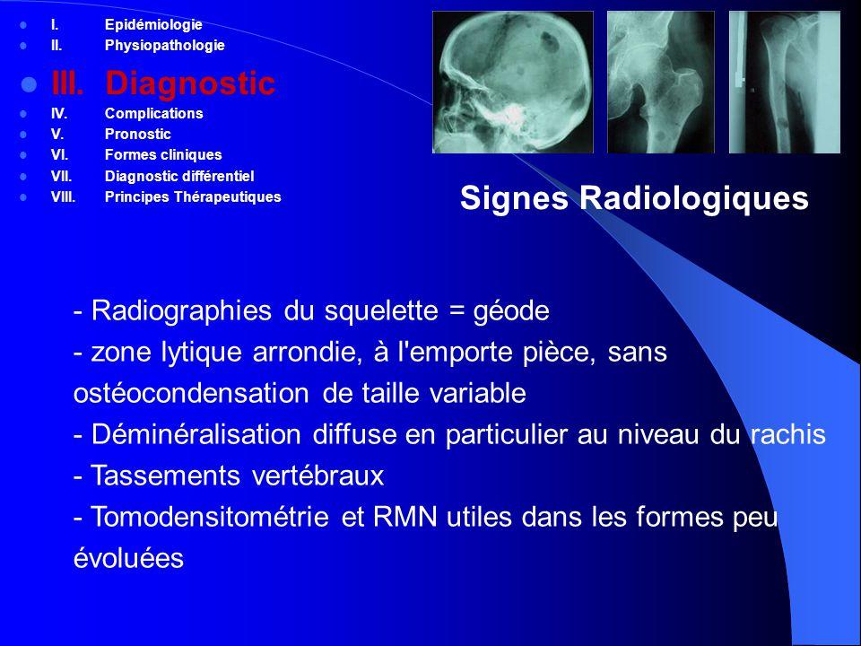 III. Diagnostic Signes Radiologiques