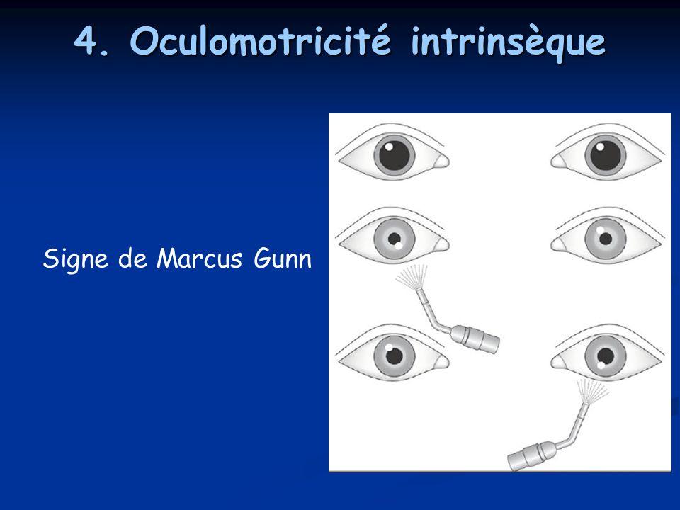 4. Oculomotricité intrinsèque