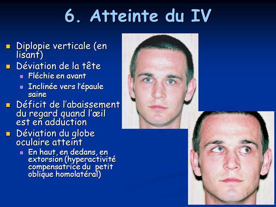 6. Atteinte du IV Diplopie verticale (en lisant) Déviation de la tête
