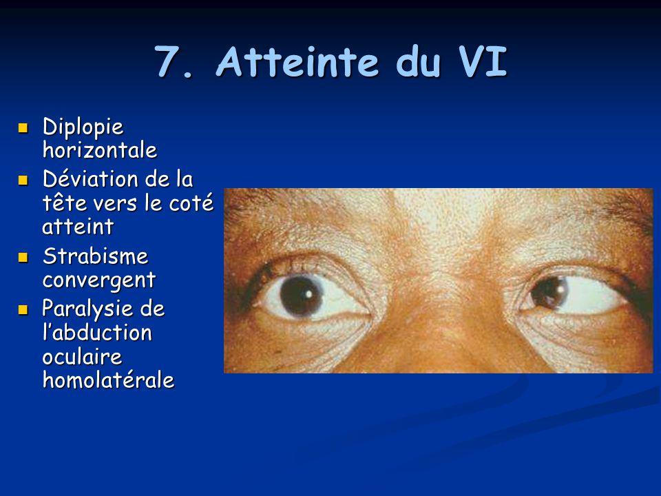 7. Atteinte du VI Diplopie horizontale