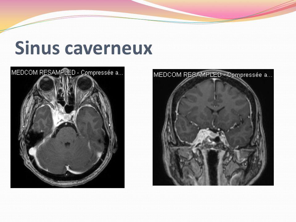 Sinus caverneux
