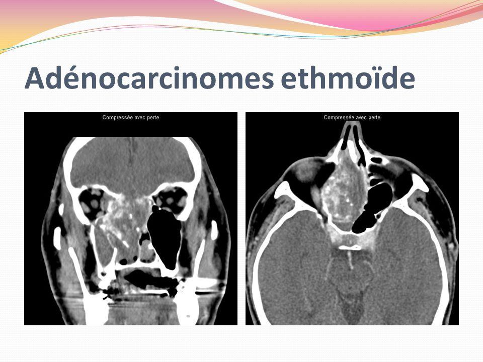 Adénocarcinomes ethmoïde