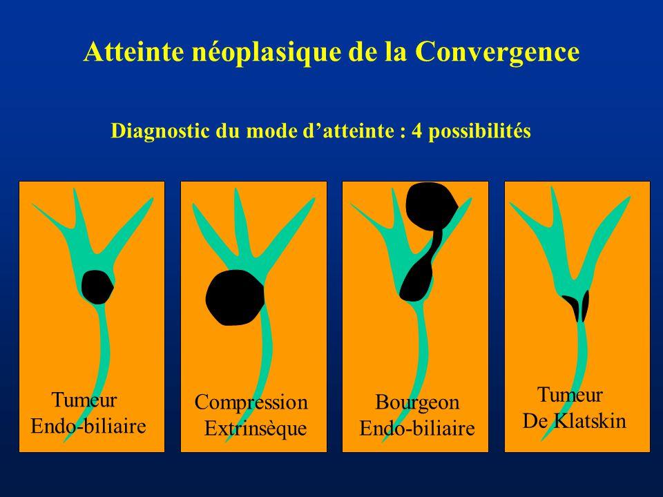 Atteinte néoplasique de la Convergence
