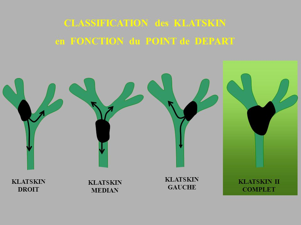 CLASSIFICATION des KLATSKIN en FONCTION du POINT de DEPART