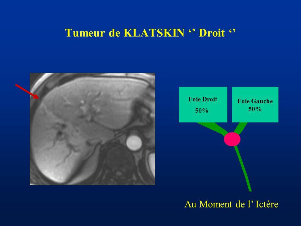 Tumeur de KLATSKIN '' Droit ''