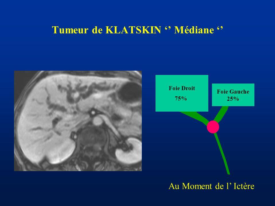 Tumeur de KLATSKIN '' Médiane ''