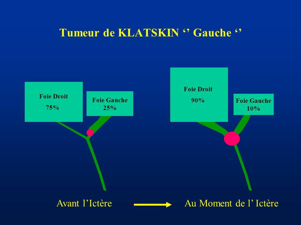 Tumeur de KLATSKIN '' Gauche ''