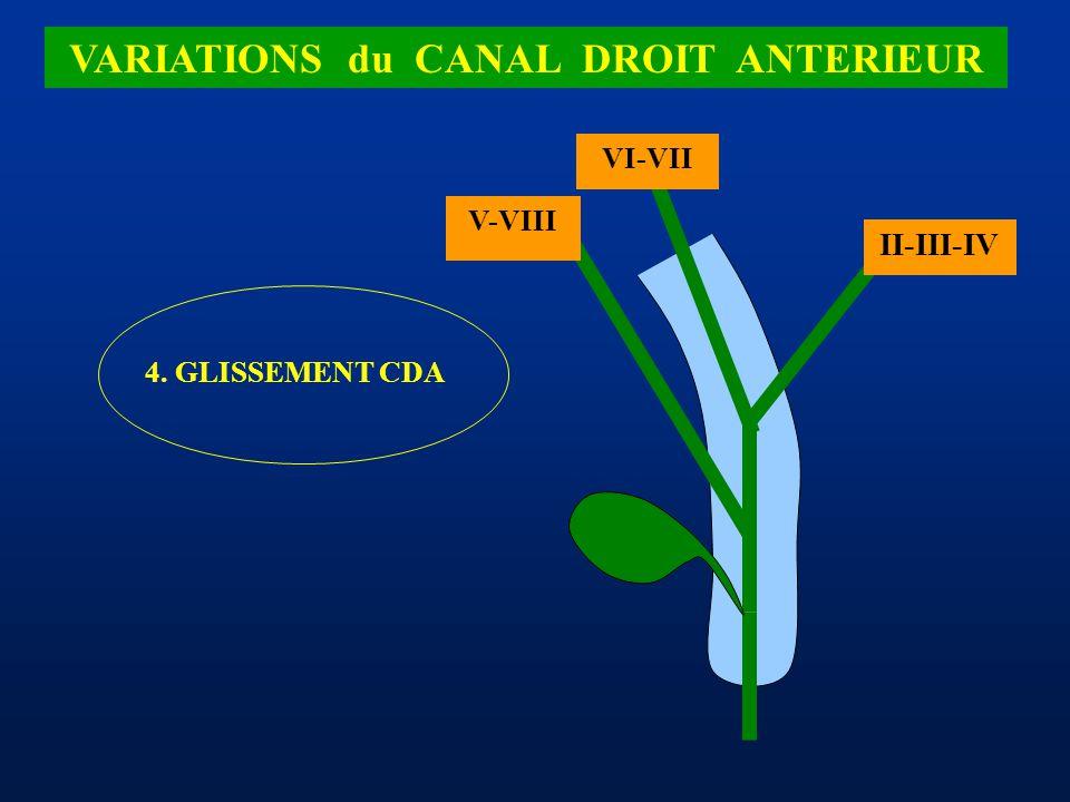 VARIATIONS du CANAL DROIT ANTERIEUR