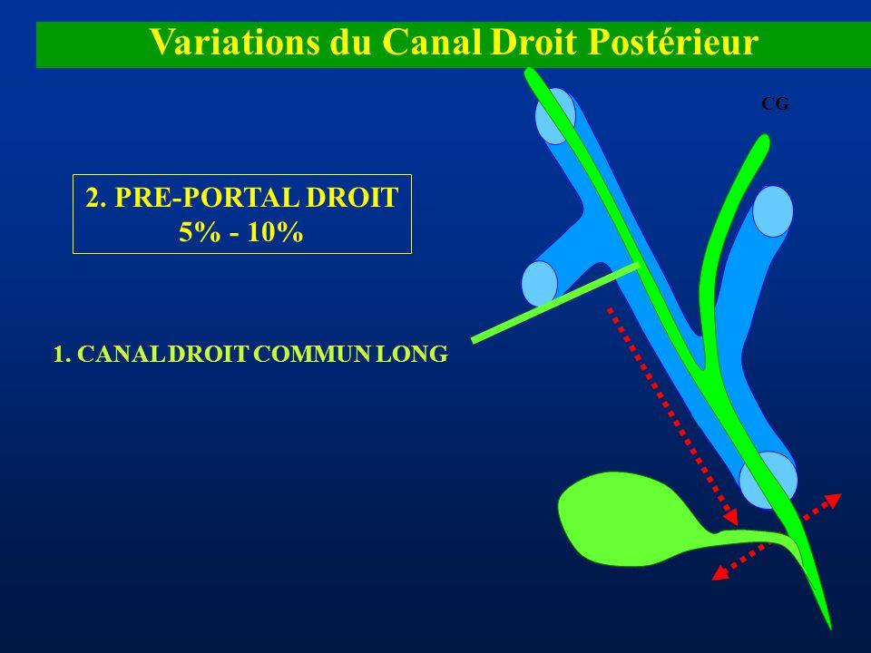 Variations du Canal Droit Postérieur