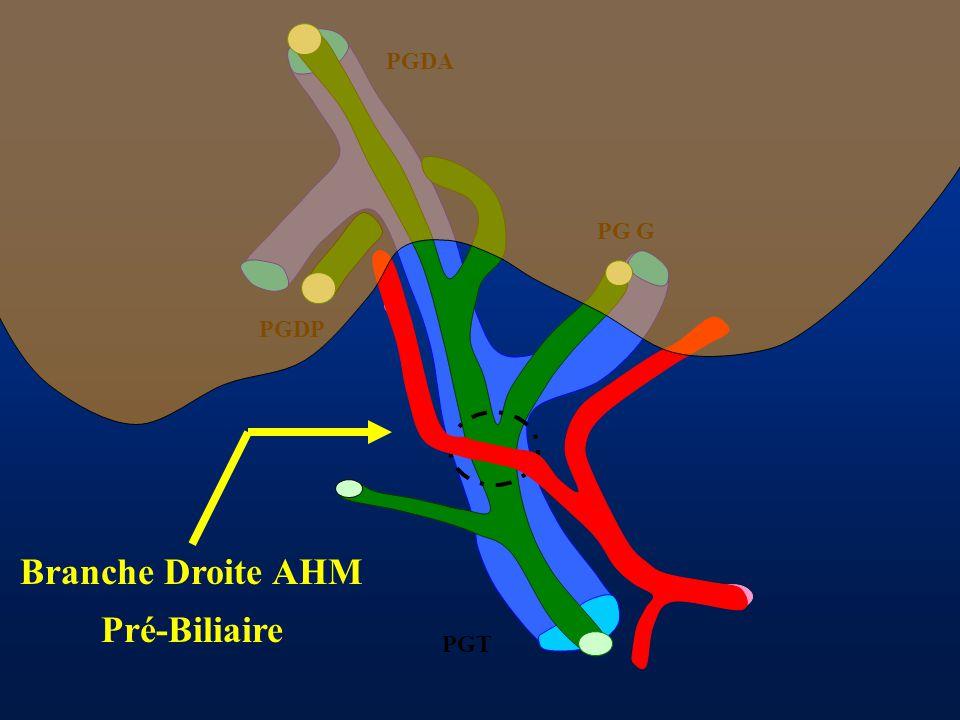 Branche Droite AHM Pré-Biliaire