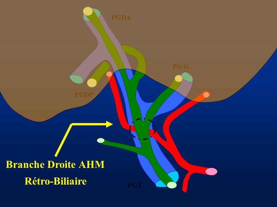 Branche Droite AHM Rétro-Biliaire