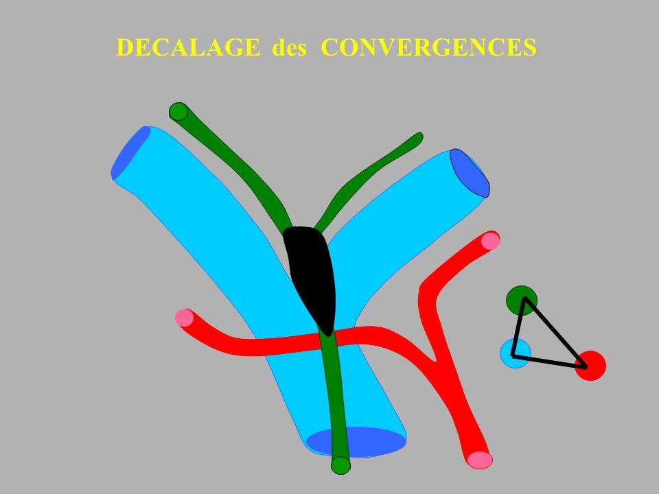 DECALAGE des CONVERGENCES