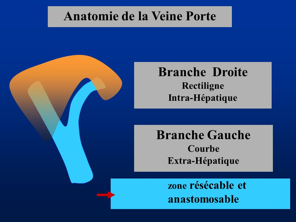 Anatomie de la Veine Porte zone résécable et anastomosable