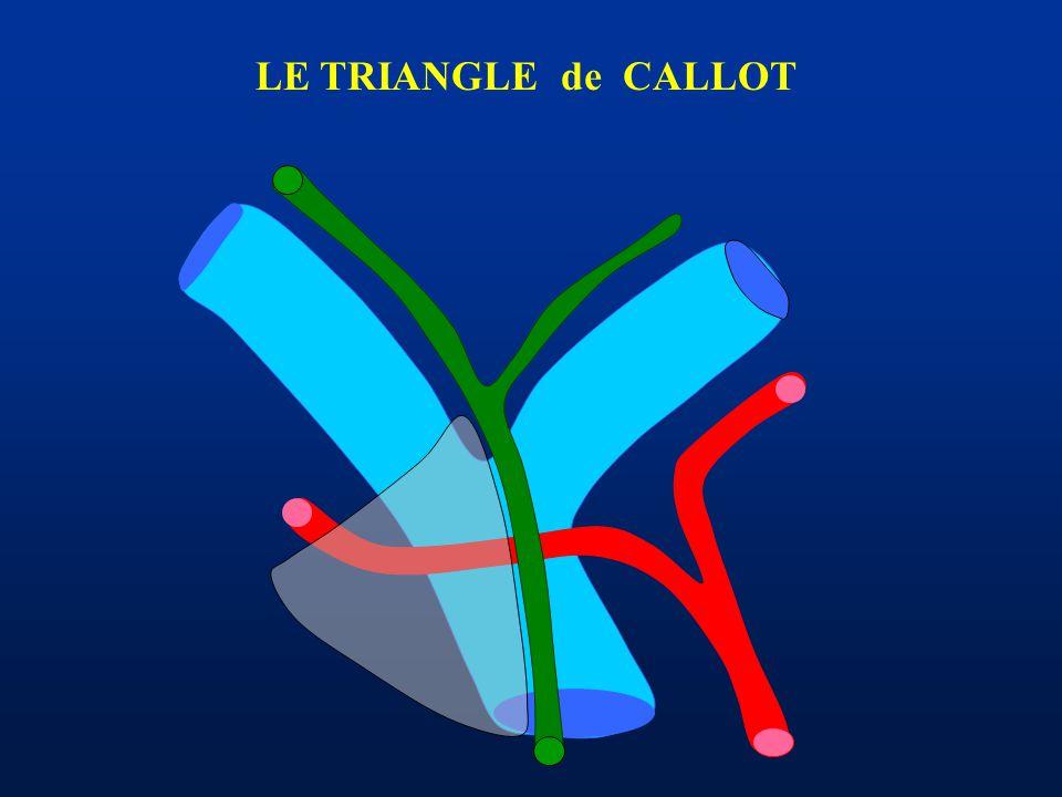 LE TRIANGLE de CALLOT