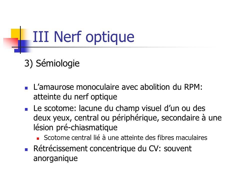 III Nerf optique 3) Sémiologie