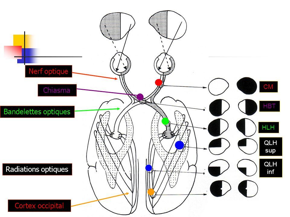 Nerf optique Chiasma Bandelettes optiques Radiations optiques