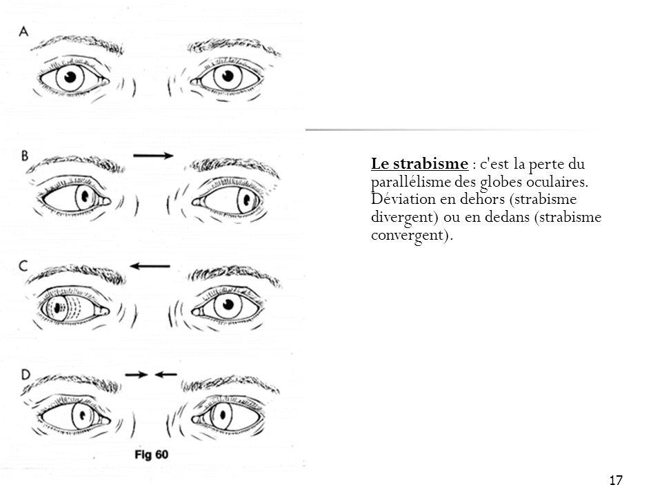 Le strabisme : c est la perte du parallélisme des globes oculaires