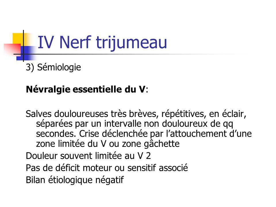 IV Nerf trijumeau 3) Sémiologie Névralgie essentielle du V: