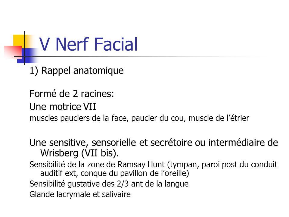 V Nerf Facial 1) Rappel anatomique Formé de 2 racines: Une motrice VII
