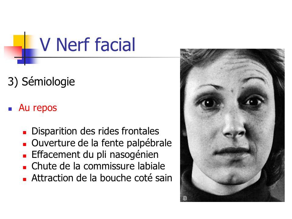 V Nerf facial 3) Sémiologie Au repos Disparition des rides frontales