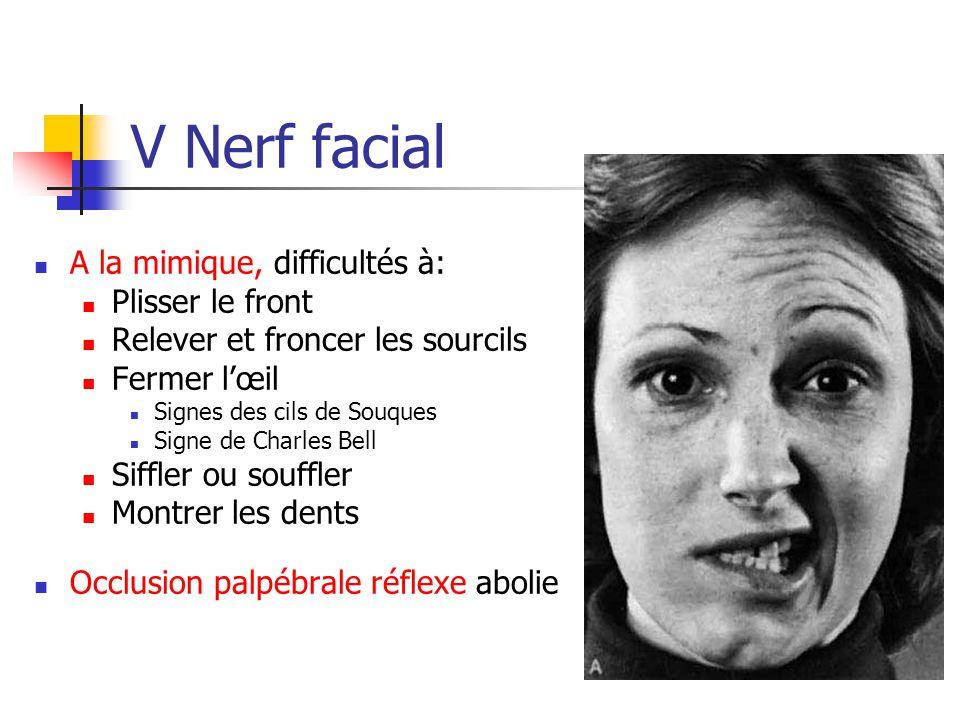 V Nerf facial A la mimique, difficultés à: Plisser le front