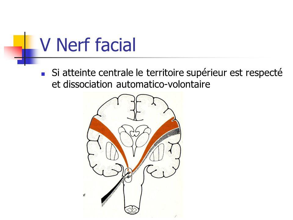 V Nerf facial Si atteinte centrale le territoire supérieur est respecté et dissociation automatico-volontaire.