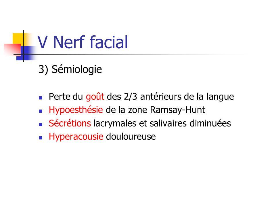 V Nerf facial 3) Sémiologie