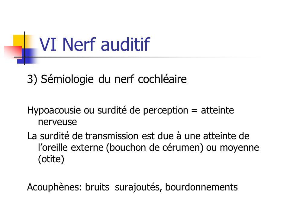 VI Nerf auditif 3) Sémiologie du nerf cochléaire